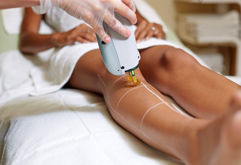 Foliculite: Tend Skin ajuda na recuperação da depilação a laser 1