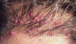 Tend Skin Foliculite superficial no couro cabeludo