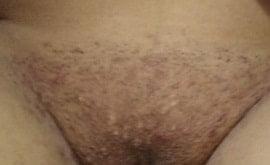 fotos de foliculite na virilha