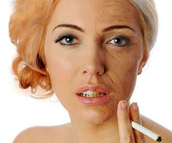 Foliculite: Cigarro pode causar foliculite e outros problemas para pele e cabelo 1
