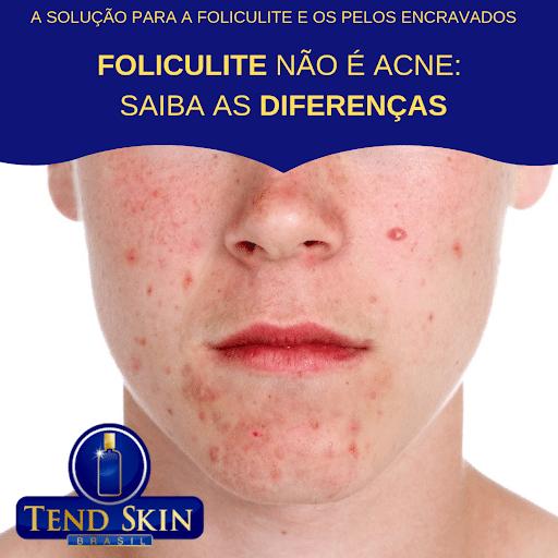 Foliculite: Foliculite não é acne: saiba as diferenças: 1