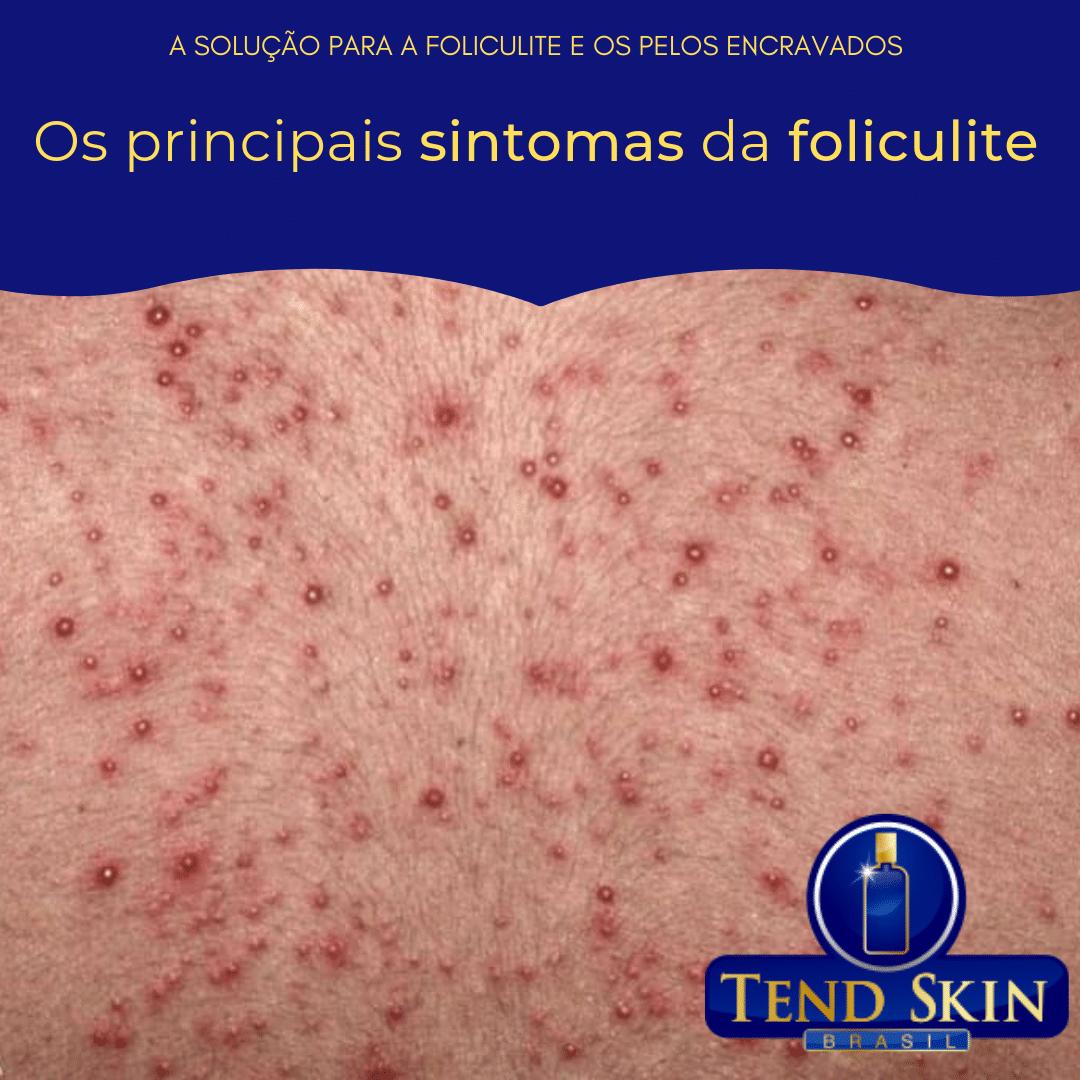 Foliculite: Os principais sintomas da foliculite 1