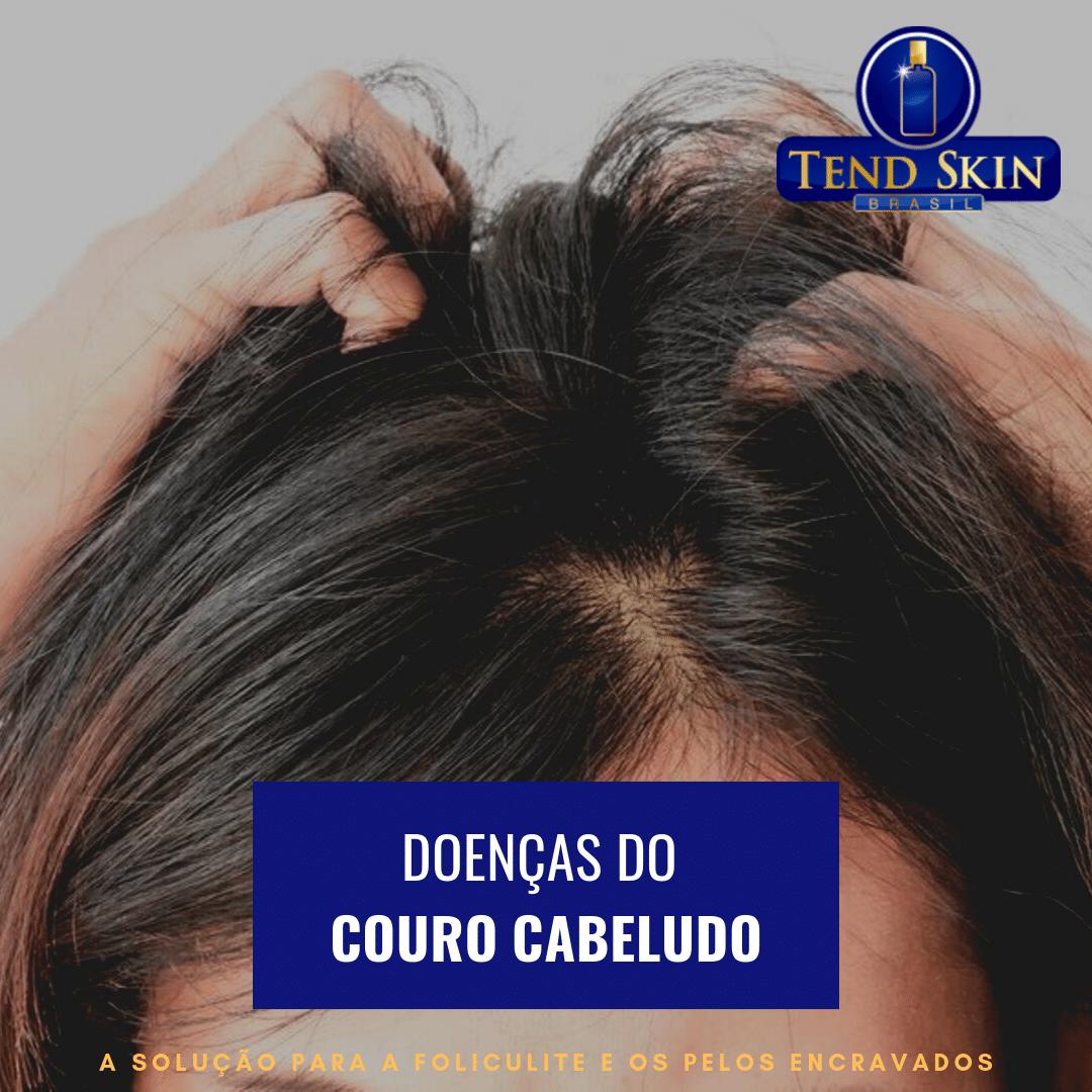 Foliculite: Doenças do couro cabeludo 1