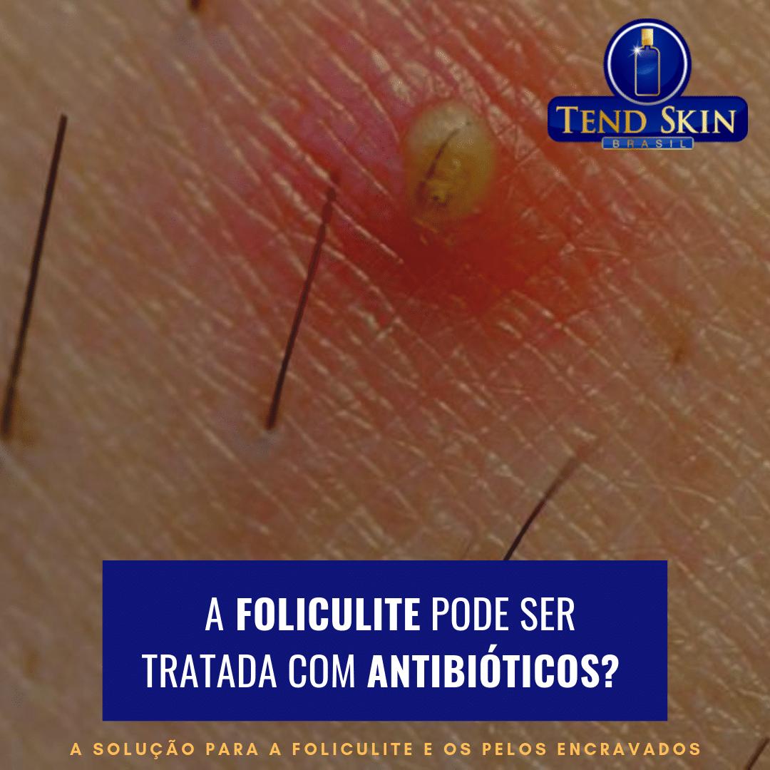 Foliculite: A foliculite pode ser tratada com antibióticos? 1