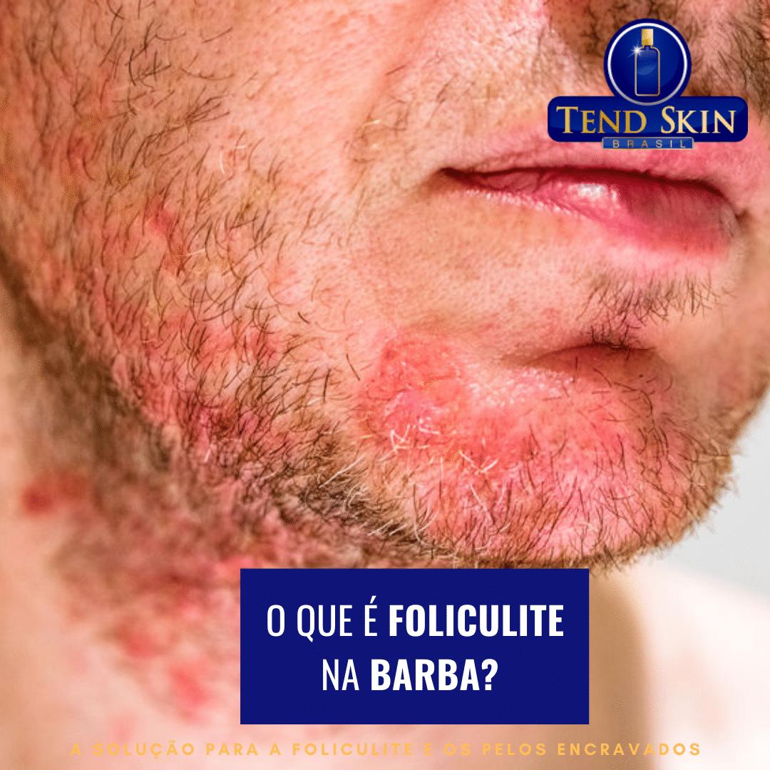 Foliculite: O que é foliculite na barba? 1