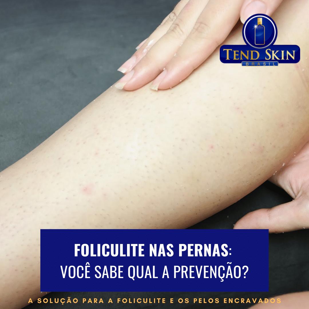 Foliculite: Foliculite nas pernas: você sabe qual a prevenção? 1