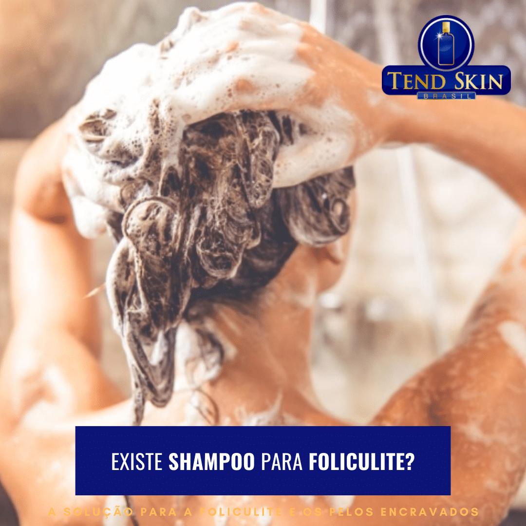 Foliculite: Tend Skin pode passado também no couro cabeludo 1