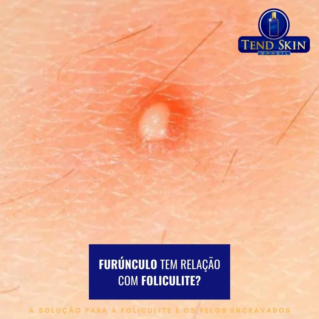 Foliculite: Furúnculo tem relação com foliculite? 1