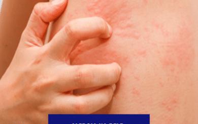 Foliculite: Alergia na pele: conheça as principais 12