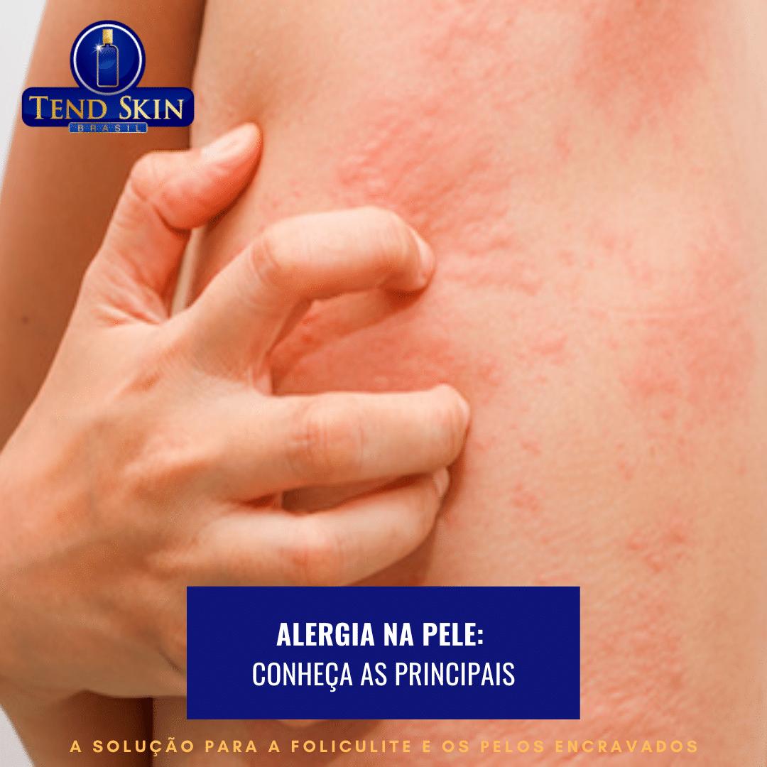 Foliculite: Alergia na pele: conheça as principais 1