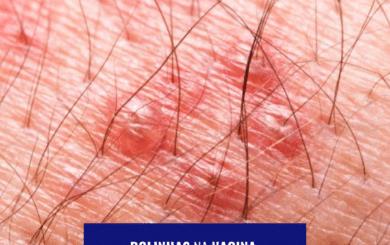 Foliculite: Bolinhas na vagina podem ser foliculite? 18