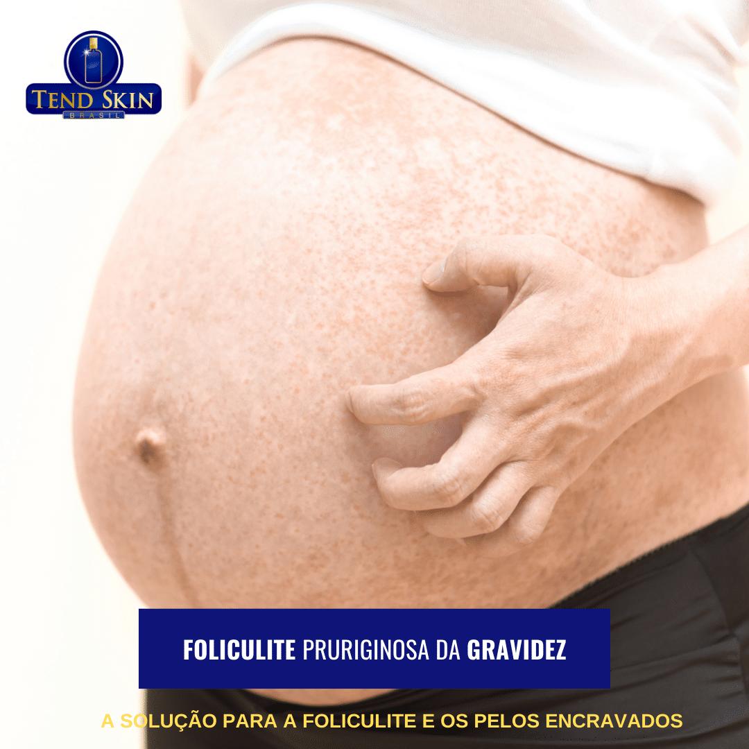 Foliculite: Foliculite pruriginosa da gravidez 1