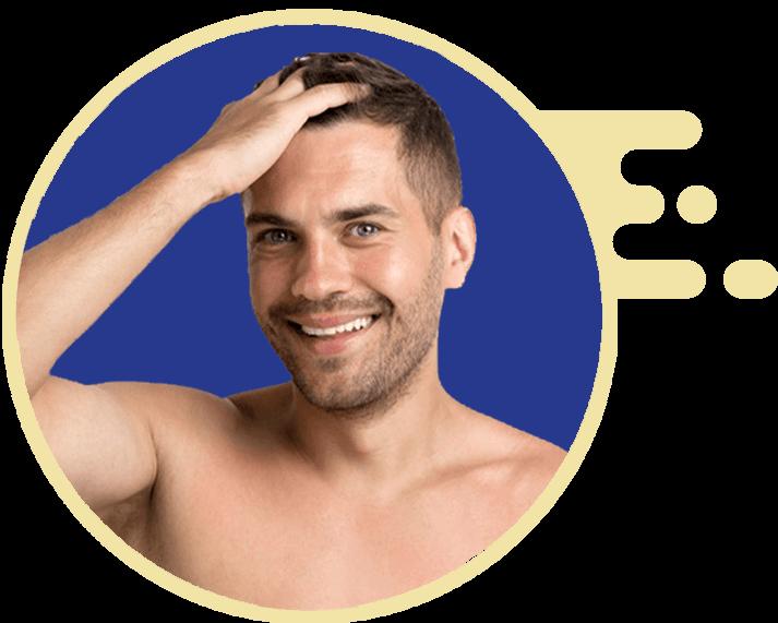 Foliculite: Foliculite capilar 3